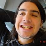 ορθοδοντική θεραπεία  - ΠΡΙΝ