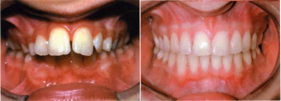 Προγναθισμός της άνω γνάθου πριν και μετά τη θεραπεία (το πάνω δόντια προεξέχουν προς τα εμπρός)
