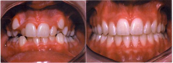 Πρόσθιος συνωστισμός πριν και μετά τη θεραπεία