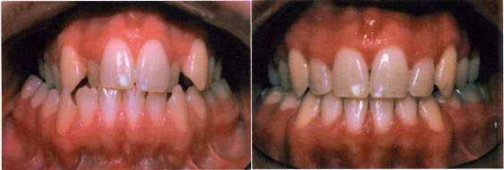 Σταυροειδής σύγκλιση πριν και μετά τη θεραπεία