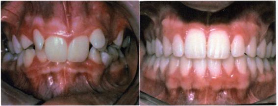 Υπερσύγκλιση πριν και μετά τη θεραπεία